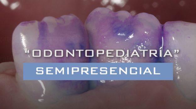 cursos-odontopediatria-semipresencial