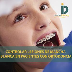conocimiento de la mancha blanca por profesionales dentales